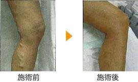 下肢静脈瘤血管内治療による下肢静脈瘤手術の効果