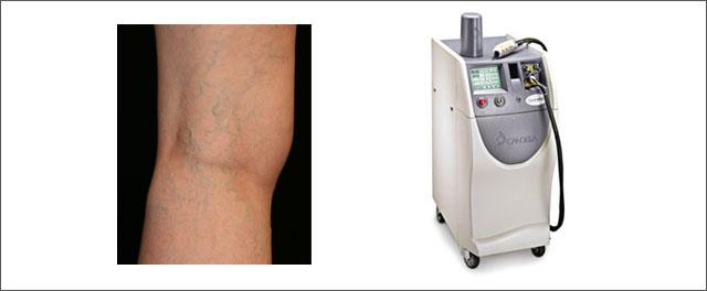 体外照射レーザー(ロングパルスYAGレーザー)治療について