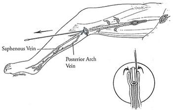 ストリッピング:病的な血管の中にストリッパーという特殊な器具を挿入して血管を固定し抜去する手術