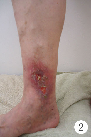 皮膚の潰瘍の治療