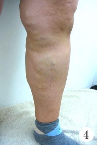 血管の拡張径が20mm以上の治療