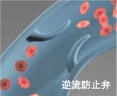 逆流防止弁が壊れて、血管が拡張してしまう