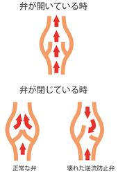 弁の状態の図