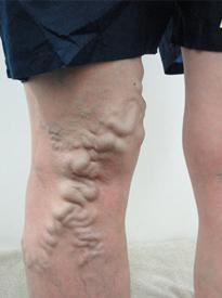 下肢静脈瘤の症状